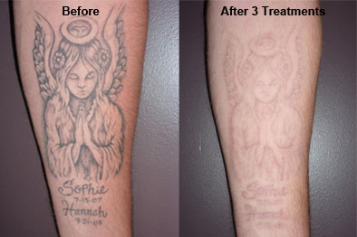 Benefits Of Removing Your Tattoo | Access Zone Design